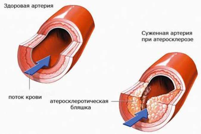 Атеросклероз мозга и физкультура