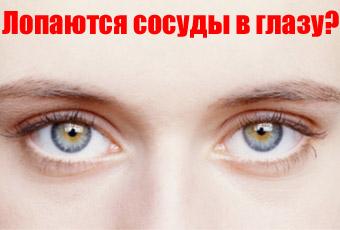Если лопнул сосуд в глазу что делать, какие причины и как лечить