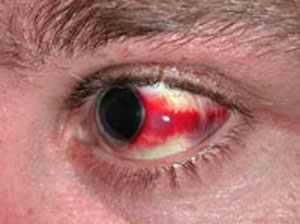 Кровь в глазном яблоке причины