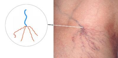Антикоагулянты лечение тромбофлебита нижних конечностей