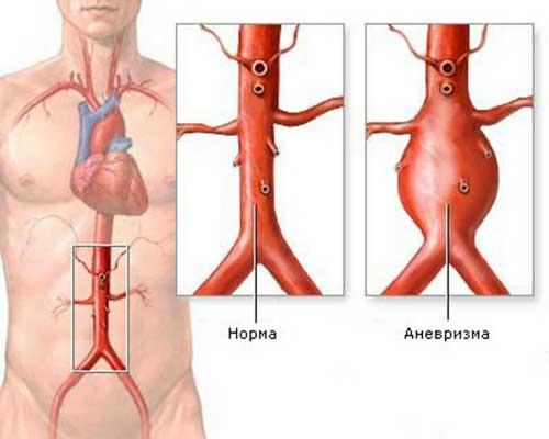 Аневризма дуги аорты фото
