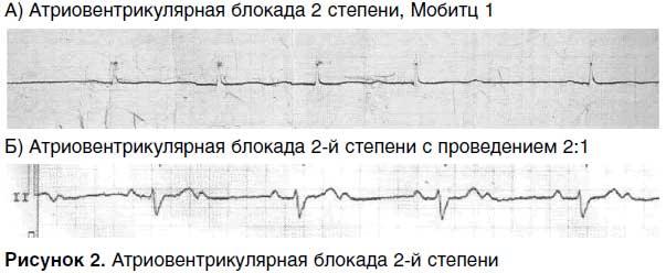 Атриовентрикулярная блокада сердца: 1,2,3 степени – симптомы и лечение