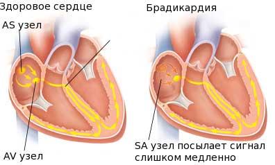 Брадикардия у детей: симптомы, причины и лечение