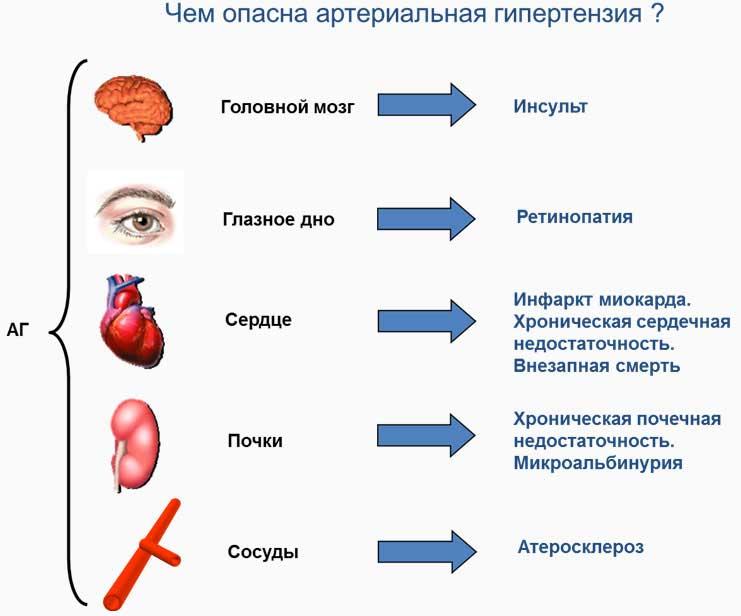 Симптомы артериальная гипертензия - Интернет скорая помощь
