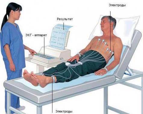 Острый трансмуральный инфаркт миокарда