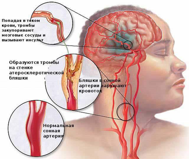 тромб в артерии головного мозга отправления: Нижний