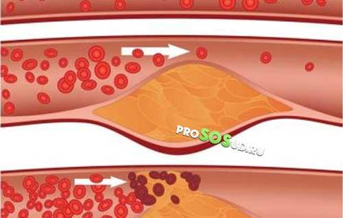 Диета при облитерирующем атеросклерозе сосудов нижних конечностей