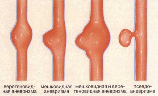 Какие лекарства от атеросклероза нижних конечностей