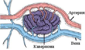 венозный застой в головном мозге лечение препараты