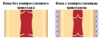 Предупреждение варикоза вен на ногах