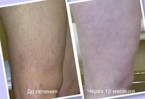 микросклеротерапии ног
