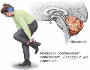 Дисциркуляторная лейкоэнцефалопатия головного мозга
