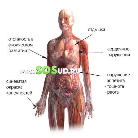 Нейроциркуляторная дистония по гипертоническому, смешанному и ...