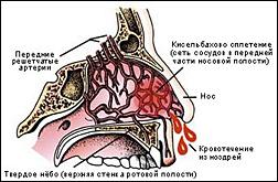 сосуды в носу