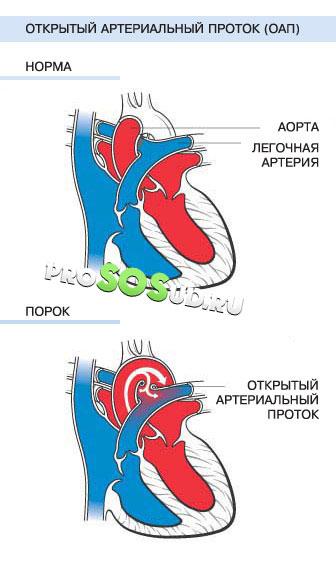 Открытый артериальный проток у новорожденных детей: лечение ...