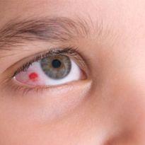 Что делать если лопнул сосуд глаза