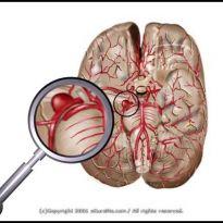 Аневризм сосудов головного мозга