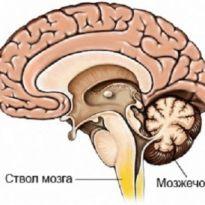Стволовой инсульт: прогнозы, симптомы, последствия