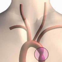 Что происходит при коарктации аорты причины диагностика и лечение