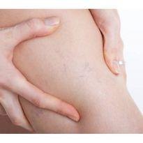 Сосудистая хирургия в травматологии и ортопедии