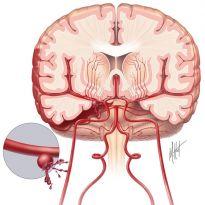 Причины субарахноидального кровоизлияния характерные симптомы и лечение