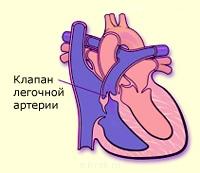 Стеноз легочной артерии у взрослых и новорождённых детей ...