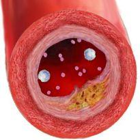 Повышенный холестерин можно ли есть куриную печень