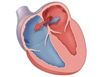 Аневризма межпредсердной перегородки сердца у взрослых и детей ...