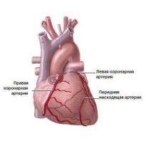 Облитерирующий атеросклероз сосудов нижних конечностей диагностика