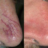Капилляры на носу: причины появления и методы удаления