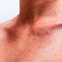 Признаки и лечение капилляротоксикоза