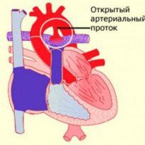 Боли сердечной мышцы симптомы и лечение