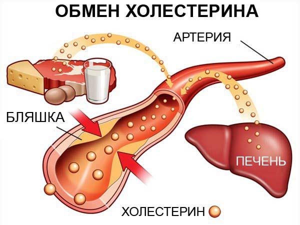 Повышенный холестерин лекарства лечение