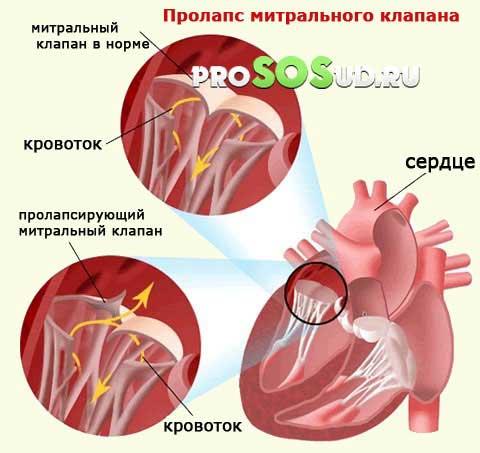 Пролапс митрального клапана 1
