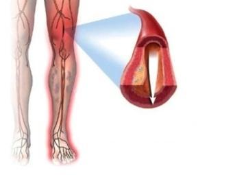 Код мкб атеросклероз артерий