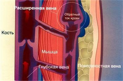 Можно ли лечить варикоз пиявками