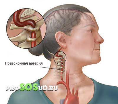 Основной метод лечения фенилкетонурии