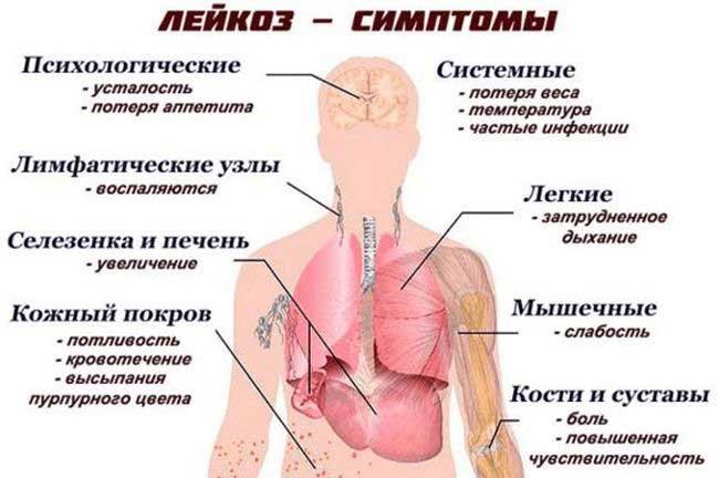symptomen leukemie jeuk