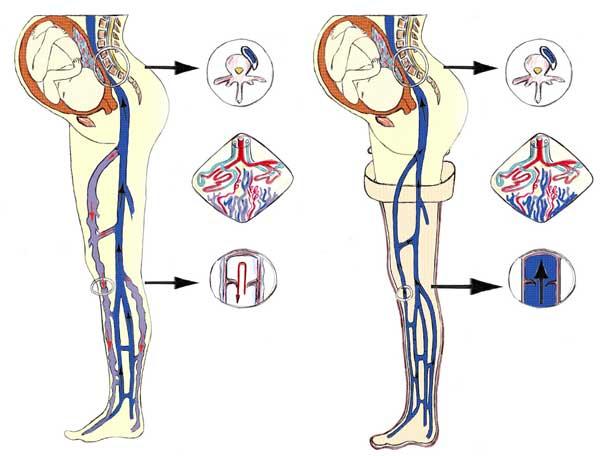 Варикозное расширение вен шишки на ногах лечение