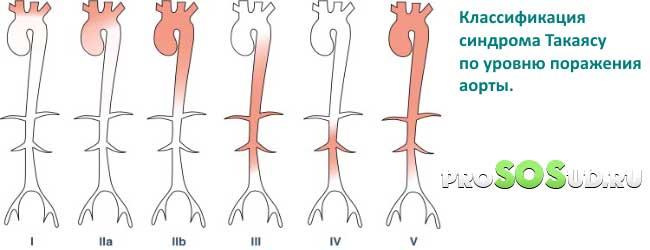 Неспецифический аортоартериит или болезнь такаясу