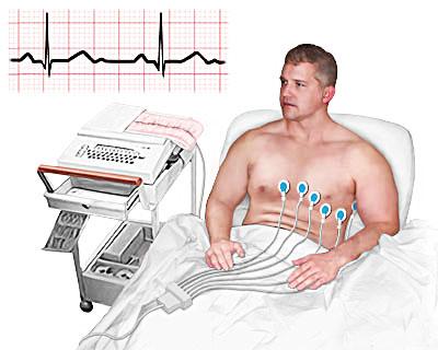Симптомы ишемической болезни сердца