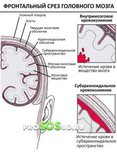 Субарахноидальное кровоизлияние головного мозга (травматическое и ...