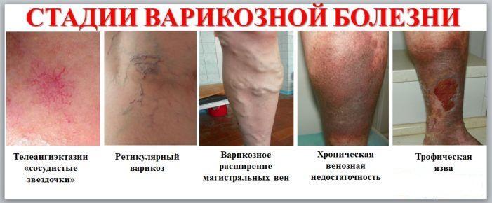 Кровь на рв из вены или из пальца
