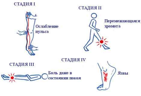 Стадии венозной недостаточности ног
