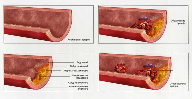 Холестериновая бляшка тромбы