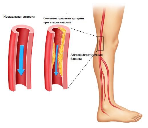 Стеноз периферических артерий нижних ...: prososud.ru/veny/stenoz.html
