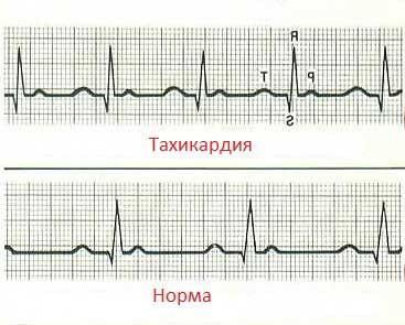 Пульс у беременной норма 3 триместр 3