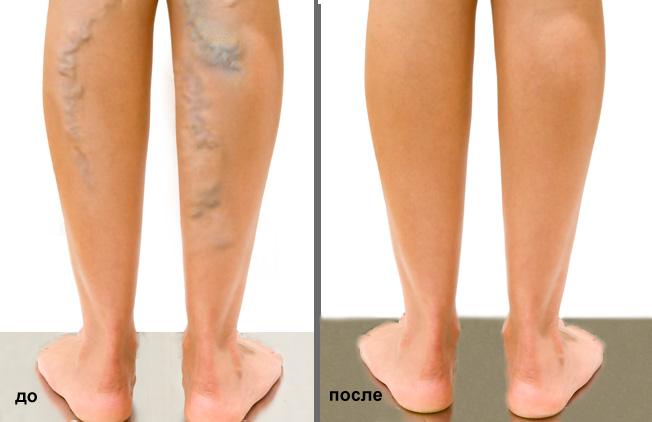 После операции на варикоз сильно болит нога