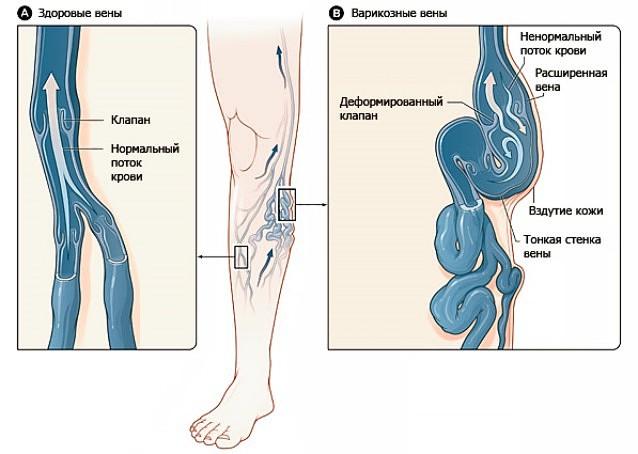 Тромбозе наружного геморроидального узла