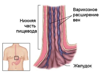 Врачи лечащие варикоз